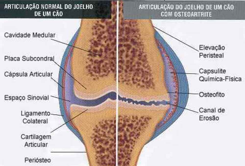 Doença articular: uso de Condroitina e Glucosamina