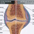 Doença-articular--uso-de-Condroitina-e-Glucosamina
